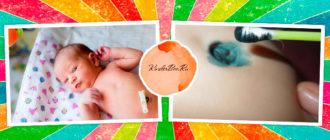 Как отпадает пупок у новорожденных с прищепкой?