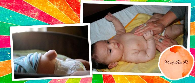 Как лечить пупочную грыжу у новорожденных