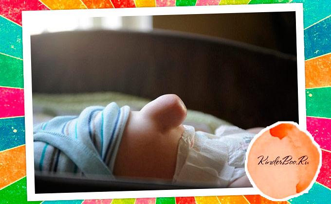 Зачем лечить грыжу у новорожденного ребенка?