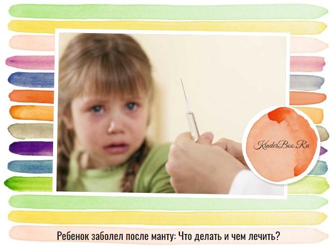 Ребенок заболел после манту: Что делать?